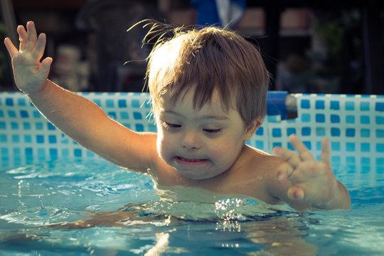 5 beneficios de la hidroterapia en personas con síndrome de Down