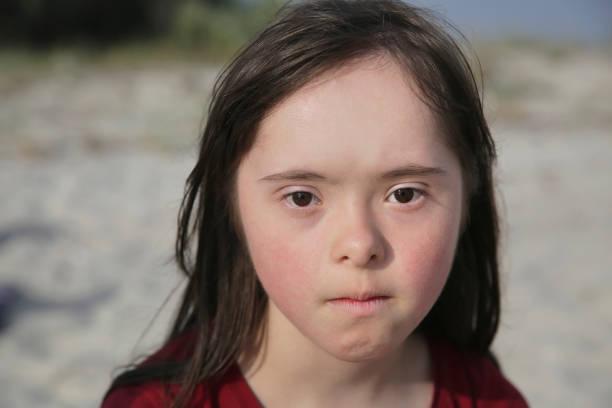 Depresión en personas síndrome de down. Cómo les afecta y cómo tratarla.